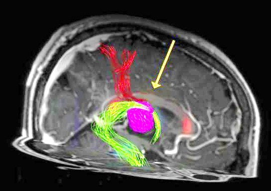 MRI showing an intra-operative image of a brain from one of Dr. Sutherland's patients, a male athlete from Red Deer. The large tumour shown in purple needs to be surgically removed.